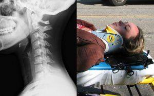 Indemnización por accidente de tráfico latigazo cervical