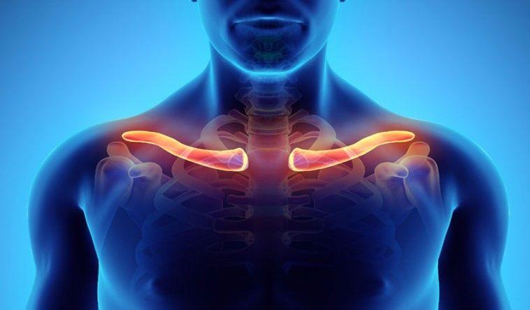 Indemnización por rotura de clavícula